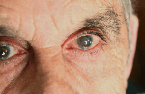 Maio Verde Prevenção e Combate ao Glaucoma
