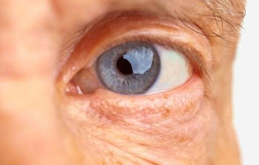 DMRI Degeneração Macular Relacionada à Idade Causas e Tratamentos