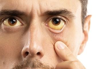 Hepatite e as doenças oculares